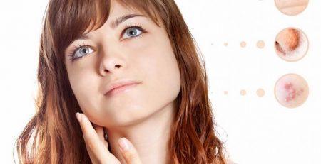 Dermatolojik Hastalıklar Tedavi Merkezi