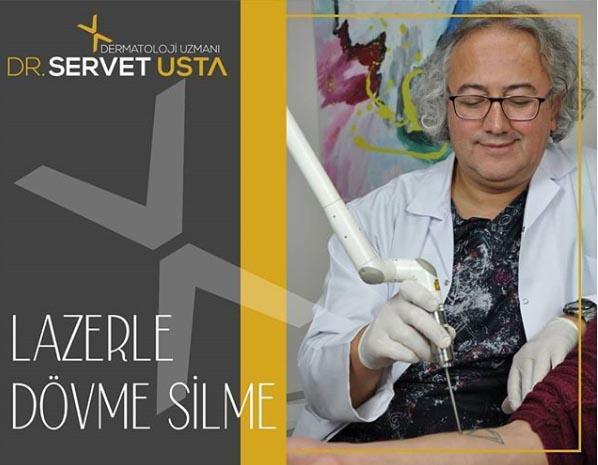 Ankara Lazerle Dövme Silme