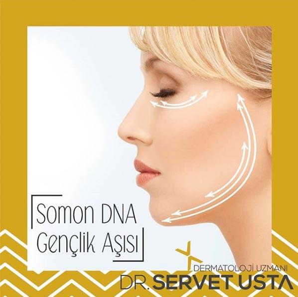 Somon DNA Ankara Uygulama
